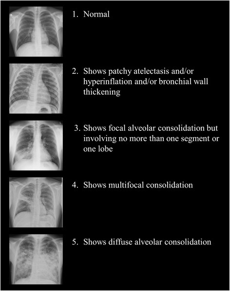 The chest radiograph severity scoring system