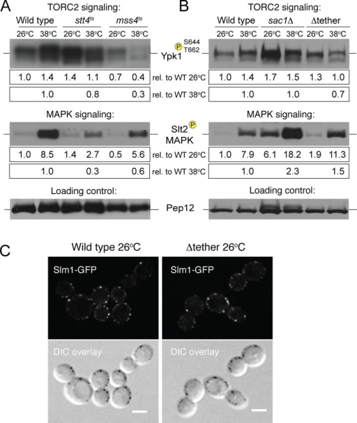 PI4P and PI(4,5)P2 metabolism control TORC2 signaling. (A) TORC2 signaling and Slt2 MAPK phosphorylation in wild-type, stt4ts, and mss4ts cells. Wild-type (WT), stt4ts, and mss4ts cells were incubated at 26 or 38°C for 2 h. Protein extracts were analyzed by immunoblotting using antisera that recognize phospho-Ypk1(T662) or phospho-Slt2. Quantifications below the blot report the difference relative to WT after normalizing to a protein loading control; results are the mean of three independent experiments. (B) TORC2 signaling and Slt2 MAPK phosphorylation in cells lacking the PI4P phosphatase Sac1 or the ER-PM tether proteins. WT, sac1Δ, and Δtether cells were incubated at 26 or 38°C for 2 h. Protein extracts were analyzed by immunoblotting using antisera that recognize phospho-Ypk1(T662) or phospho-Slt2. Quantifications below the blot report the difference relative to WT after normalizing to a protein loading control; results are the mean of three independent experiments. See Supplemental Figure S5. (C) Slm1-GFP localization in WT cells (left) and Δtether cells (right). Bottom, differential interference contrast overlays. Scale bar, 5 μm.