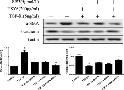 Effect of HSYA and SIS3 onthe expression of α-SMA and E-cadherin in HK-2 cells.HK-2 cells treated with HSYA and SIS3for 48 h after stimulated with TGF-β1 (5 ng/ml). The a-SMA and E-cadherin expression level were detected by western blot. β-actin was used as a loading control. Semi-quantitative data from densitometric analysis of a-SMA and E-cadherin are presented as mean±SD, n = 3. #P<0.05 compared with control group; *P<0.05,**P<0.01 compared with TGF-β1-stimulated group.