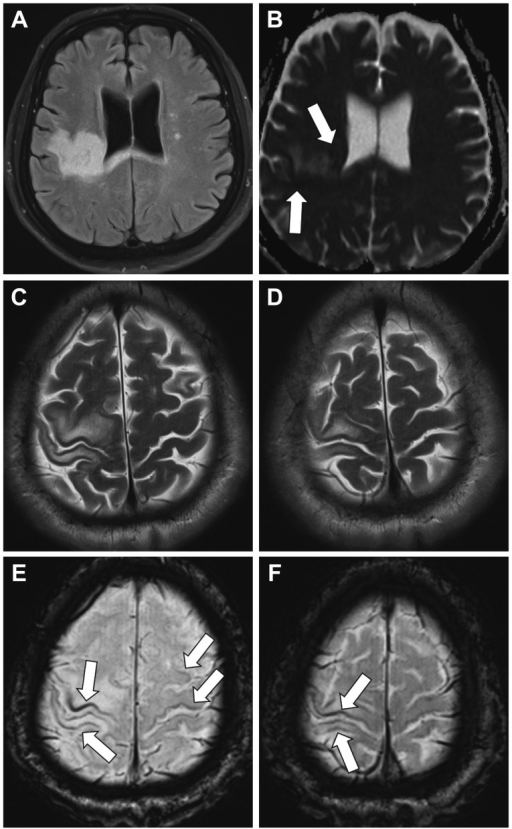 Three Tesla Brain MRI findings. A: Brain FLAIR sequence showing hyperintense lesions in the U-fibers, deep white matter of the right hemisphere, and the splenium of the corpus callosum. B: Brain apparent diffusion coefficient sequence showing restricted diffusivity at the lesion borders (arrows), which is a characteristic neuroimaging finding of PML. C and D: T2-weighted MRI sequence showing sparing of the cortex at the involved right precentral and postcentral gyri. E and F: SWI images revealing laminar hypointensities of the cortex (arrows) at the involved sites and also over normal-appearing white matter. FLAIR: fluid attenuated inversion recovery, PML: progressive multifocal leukoencephalopathy, SWI: susceptibility-weighted imaging.