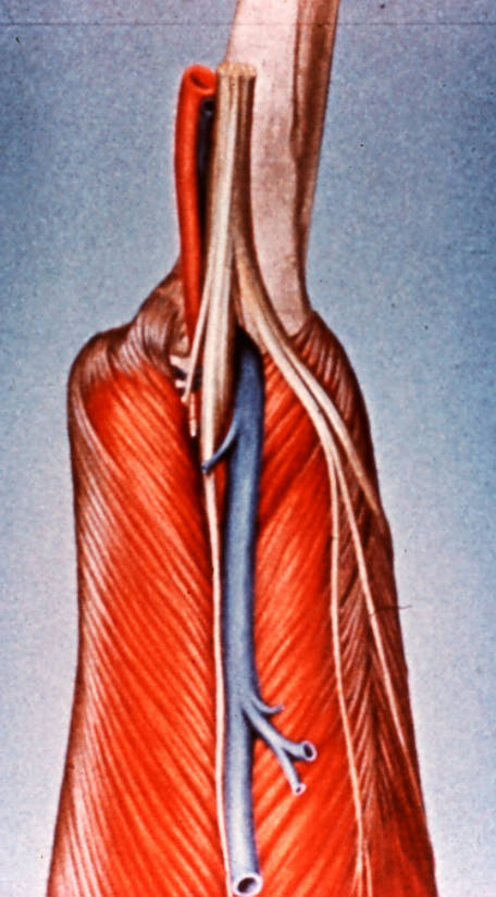 gastrocnemius muscle; tibial nerve bifurcation; sural nerve; common fibular (peroneal) nerve; tibial artery; small saphenous vein