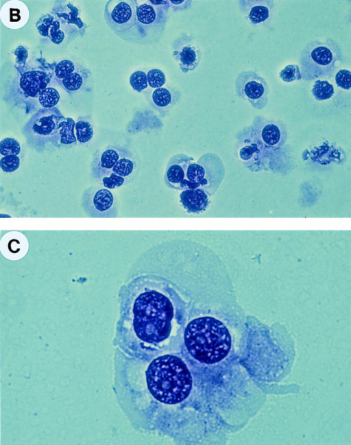 Isolation of highly purified FDC by FACS® sorting. (A) Low  density tonsillar cells were stained by anti–CD21-PE and anti–CD14FITC (detailed in Materials and Methods). FDCs were sorted according  to their CD21++CD14+ phenotype. B cells and monocytes could be recognized as CD21+CD14− and CD21−CD14+ cells, respectively. (B and  C) Giemsa staining of FACS® sorted FDC (×400 and ×1,000).