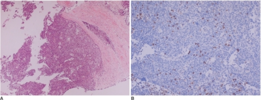 Photomicrograph (A) discloses lobular growth of the oval to polygonal cells that are separated by dense fibrous stroma (Hematoxylin & Eosin staining, ×100). Immunohistochemical staining (B) demonstrates the presence of thymocytes in the tumor cell nests (CD99, ×100).