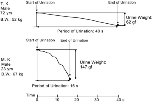 A typical example of a urine monitor. The upper and lower panels show young and elderly subjects, respectively.