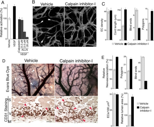 VEGF increases calpain activity in MVECs, and calpain inhibitor-I improves VEGF angiogenesis.(A) MVECs, cultured in the absence of VEGF, were incubated with fluorescent calpain substrate (see Methods) and stimulated with 20 ng/ml VEGF for 15 min; n≥10; control vs. VEGF (p<0.001), VEGF vs. VEGF plus 200 nM calpastatin peptide (p<0.002), VEGF vs. VEGF plus 200 nM ALLN (p<0.002). (B) VEGF-stimulated MVECs undergoing capillary morphogenesis in 3D collagen. Reduction of calpain activity to normal baseline levels with 200 nM calpain inhibitor-I reduced blind ends (white arrows) and markedly improved integration of cord networks. Bar  = 50 µm. (C) Quantification of cord assays shown in (B); n≥15. Measured parameters correspond to values for samples areas of 0.4 mm2. Calpain inhibitor-I at the 200 nM dose had no effect on EC density but strongly improved vascular network integration, as indicated by >100% increase in average cord length (p<0.003), >50% reduction in blind ends (p<0.001), and nearly 50% increase in polygons, i.e. closed networks (p<0.005). (D) Daily systemic administration of calpain inhibitor-I (10 mg/kg) improves integration and perfusion of new blood vessels. Skin angiogenesis was provoked by VEGF as in Figure 1 but without retroviral packaging cells. Instead animals were treated daily, beginning on day 2, with 10 mg/kg calpain inhibitor-I and harvested on day 8. Evans Blue Dye: images of dermis overlying the Matrigel implants (scale bar  = 250 microns) following perfusion with dye for 10 min, illustrating that calpain inhibitor-I improved blood vessel integration and perfusion (blue color) and reduced blind ends (arrows) relative to vehicle control. CD31 Staining: ECs in cross section stained with CD31 antibody (brown color) illustrating that calpain inhibitor-I improves lumen formation (arrows) relative to control. Scale bar  = 30 microns. S  =  smooth muscle, V  =  region of neovascularization, M  =  Matrigel. (E) Quantification of new blood vessel density, closed vascular networks (polygons), and blind ends from gross images, and EC density and relative lumen area in cross-section from paraffin sections stained with CD31 antibody; n≥17. Gross vessel density (p<0.01), polygons (p<0.03), blind ends (p<0.01), relative lumen area (p<0.01). Numbers of polygons and blind ends correspond to sample areas of 10 mm2.
