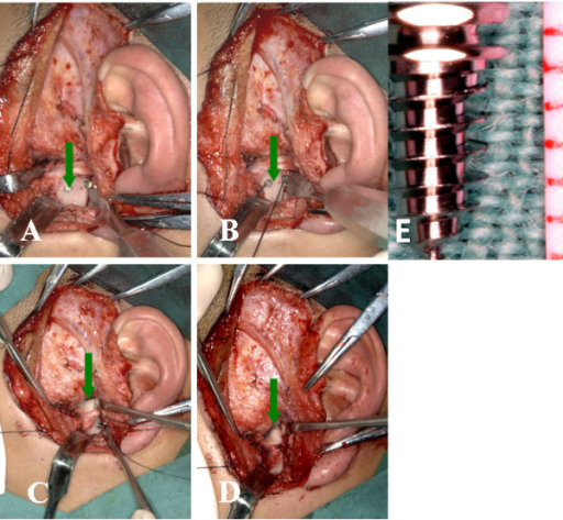 Titanium anchors and sutures during the procedure. A showed the titanium anchor in the condyle (green arrow). B showed the sutures tied in the titanium anchor (green arrow). C and D showed the disc repositioned and sutured (green arrow). E showed the actual anchor.