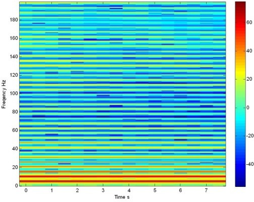 Spectrogram in dB. LFP of a not stimulated population of 100 Morris Lecar neurons.