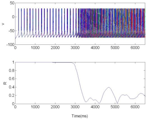 The membrane potentials v(t) of 225 neurons are plotted: they show the characteristic synchronized and desynchronized bursting activity. The population was organized in random network and stimulated via four electrodes. R: Synchronization measure X = 1 for t ∈ [3,6.5]s, excitatory stimulation; X = 0 elsewhere.