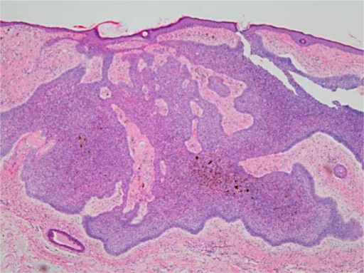 Biopsy specimens (H&E staining) demonstrating typical nodular and infiltrative types of linear BCC. Nodular tumor with peripheral palisading.