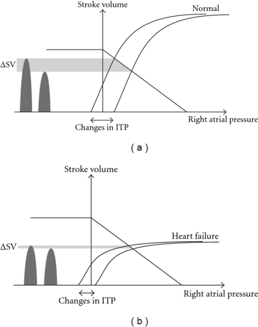 cardiac output thesis This thesis aims to describe the evaluation of the cardiac output methods most often used in the icu historical and physiological aspects of cardiac output and respirator induced.