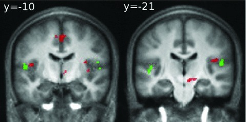 "Hyperactivation in the Rolandic operculum (BA 43/40) in the AAT group during auditory oddball task (red voxels) for the contrast ""Target sound vs. baseline"" with superimposition of cortical activations in BA 43 found in Job et al. (2011) study for the contrast ""tympanic movement due to air pressure variations vs. no pressure variations"" in normal hearing subjects (green voxels)."