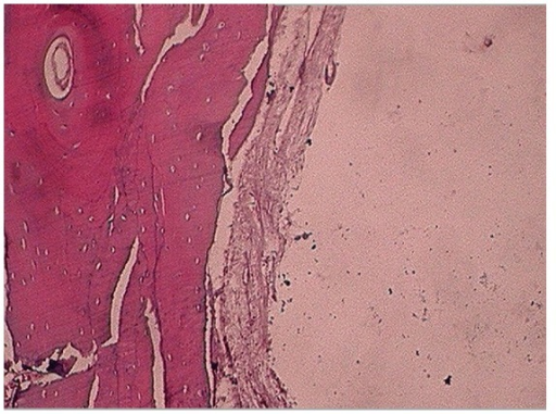 H&E stained section of the curetted tissue exhibits osseous cystic wall and overlying fibrovascular tissue with no epithelial lining. (10x).