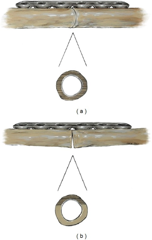 Scheme of femoral sawbones under compression plating at the simulated allograft-host junction site (SAHJS). Images demonstrating 100% contact (a), minimal contact with gapping (b).