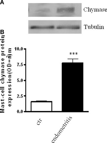 Representative Western blot analysis (A) and relative densitometric analysis (B) of chymase (MW 45 kD), a marker of mast cells, in biopsies from healthy women and women suffering of endometritis. Tubulin expression is shown as control. Data are representative of six separated experiments. Each bar in the graph shows the mean ±SEM of six experiments. ***P<0.001 versus healthy patients.