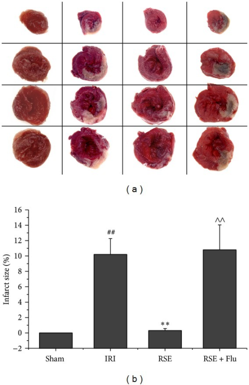 Infarct size after myocardial I/R injury. (a) Representative photos of TTC stained left ventricle slices. Deep red-staining areas indicate normal tissue, and unstained pale areas indicate infarct tissue. (b) Bar chart of myocardial infarct size determined by TTC staining. Data are shown as mean ± S.E.M, n = 6~7/group. ##P < 0.01 versus Sham group, **P < 0.01 versus IRI group, ∧∧P < 0.01 versus RSE group.