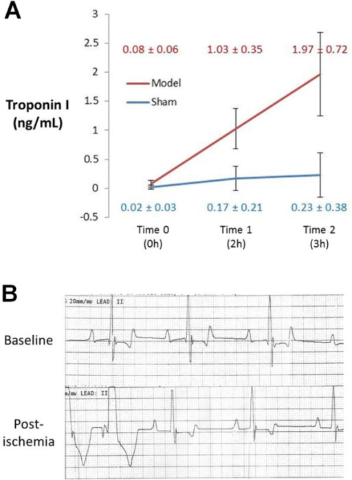 Troponin I and ECG. A) Blood was drawn for troponin-I (TnI) measurement at three time points: baseline/pre-surgery (Time 0), post-stenosis and post-pacing in model dogs or at the end of CMR examination in sham dogs (Time 1, approximately 2 hours after surgery), and just before euthanasia (Time 2, approximately 3 hours after surgery). While thoracotomy and instrumentation produced minimal TnI elevation in operated sham animals, TnI was significantly higher (though only mildly elevated) in the NSTE-ACS model. B) Representative ECG tracings at baseline and after ischemia (stenosis and pacing) demonstrated premature ventricular contractions but no ST elevation with ischemic conditions in the NSTE-ACS model.
