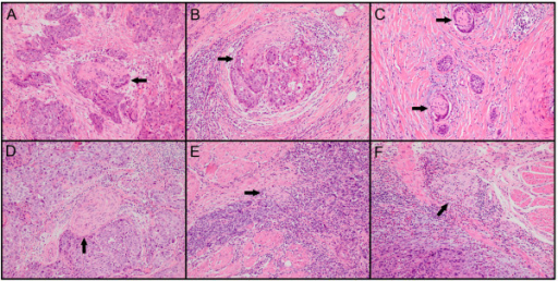 The status of perineural invasion (PNI) in ESCC specimens. Tumor cells located within any of the endoneurium (A), perineurium (B) and epineurium (C) of the peripheral nerve sheath are clear examples of PNI. When tumor cells are not located inside of the nerve sheath but are in close proximity to the nerve in the perineural environment, at least 33% of the circumference of the nerve should be surrounded by tumor cells to diagnose PNI (D); anything less than 33% represents focal abutment and not invasion (E). When tumor cells are not in close proximity to the nerve in the perineural environment (F), it represents negative finding (hematoxylin-eosin staining, ×100).