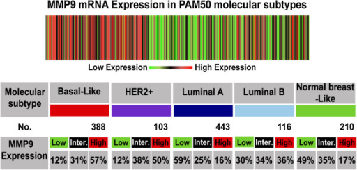 "In silicoanalysis ofMMP-9mRNA expression in breast cancer subtypes. The heat map and table are produced from the bc-GenExMiner database v3.0 showing the expression of MMP-9 at mRNA level in different molecular subtypes of breast cancer as determined by PAM50. Overexpression of MMP-9 is associated with basal-like and HER2-positive breast cancers. The ""aov"" and ""TukeyHSD"" functions were carried out to compare the mRNA levels within each breast cancer molecular subtypes."