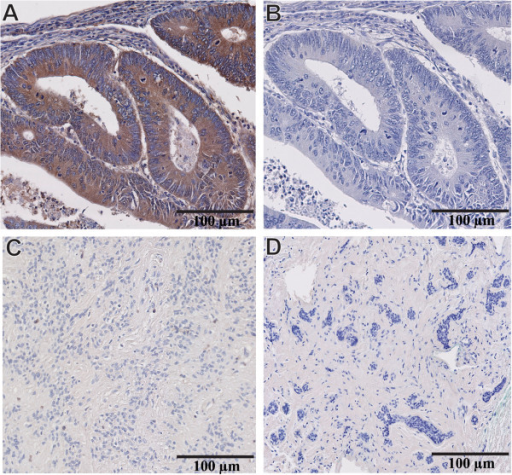 Validation of MMP-9 antibody specificity for IHC studies. (A) Human colorectal carcinoma with intense cytoplasmic labeling of the cancer cells after incubating the section with MMP-9 primary antibody. (B) Adjacent section from the same colorectal tumor incubated with a non-immune serum that contains IgG (same isotype/ same species) showing complete lack of expression of MMP-9. (C) Benign myofibroblastoma of breast tissue and (D) Benign breast fibroadenoma do not express MMP-9. Magnification 20X (A-D).