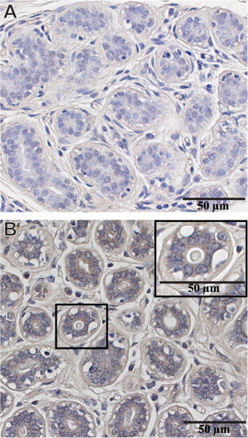 Expression of MMP-9 in normal breast tissue. (A) Normal breast lobule lacking MMP-9 expression in both luminal and myoepithelial cells. Adjacent stromal cells also fail to express MMP-9 (74% of the patients). (B) Normal breast tissue exhibiting faint expression of MMP-9 in the cytoplasm of luminal cells, myoepithelial cells and in a few stromal cells surrounding normal breast acini. A &B are two distinct normal breast tissue from the same TMA incubated with anti-MMP9 antibody. Magnification 40X (A&B), 63X inset in Figure 4B.