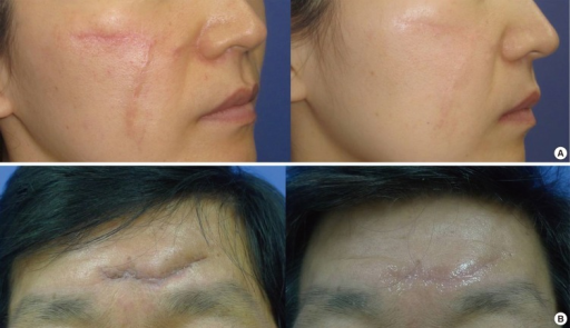 A Before And After Views Of Silicone Gel Sheet Use In Open I