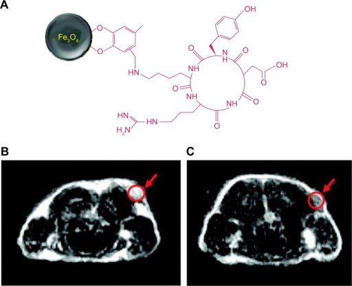 Schematic illustration of the coupling of cRGD peptide to the SPIONs.Notes: (A) MRI cross-section image of the U87MG tumors implanted in mice; (B) without the nanoparticles; and (C) with the injection of 300 μg of cRGD-SPIONs. Reprinted with permission from Ho D, Sun X, Sun S. Monodisperse magnetic nanoparticles for thera nostic applications. Acc Chem Res. 2011;44:875–882.60 Copyright 2011 American Chemical Society.Abbreviations: cRGD, cyclic arginine-glycine-aspartic acid; SPIONs, superparamagnetic iron oxide nanoparticles; MRI, magnetic resonance imaging.