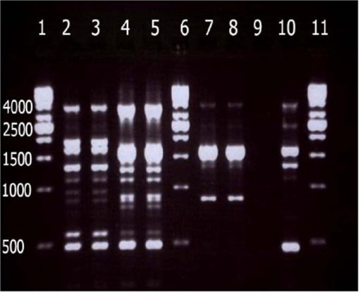 Electrophoresis of REP-PCR products for three major clone of CRAB. Double fingerprints have been shown for each isolate. Lanes 1, 6 , 11, 1 kb DNA ladder. Lanes 2, 3 (clone A), lanes 4, 5 (clone B), lanes 7, 8 (clone C), Lane 9, negative control and lane 10, A. baumanniiNCTC 12156 (ATCC 19606).
