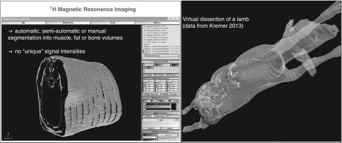 Examples for image analysis and 3D re-calculation (left software used: sliceOmatic,Tomovision Inc.; right software used: 3D DOCTOR, Able Inc., data from Kremer,2013).