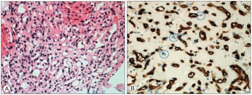 Photomicrographic view of the tumor specimens showing a vascular lesion composed of prominent thin-walled vessels with vacuolated stromal cells (Hematoxylin and eosin, ×50) (A). Blue circles indicate positively stained endothelial cells (Immunostain for CD34 stain, ×200) (B).
