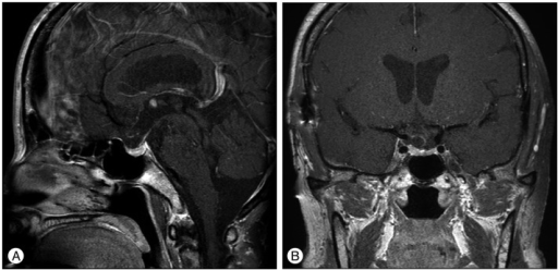The sagittal (A) and coronal (B) brain magnetic resonance images with contrast which obtained 6 months after complete removal of the tumor demonstrate an intact pituitary stalk and no residual tumor.