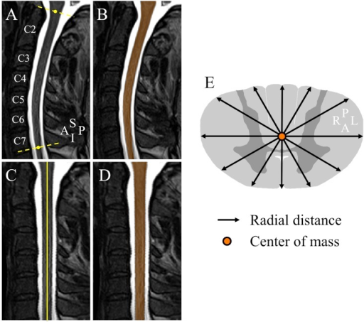 Spinal cord segmentation, cord straightening and radial distance illustration.(A) Preprocessed T2-weighted mid-sagittal section in an SMA patient. The yellow dashed lines delimit the cervical spinal cord region. (B) Resulted segmentation mask (orange). (C) Cervical spinal cord straightening. (D) Mask straightening (orange). (E) Radial distance measurements. A, anterior; I, inferior; L, left, P, posterior, R, right, S, superior.