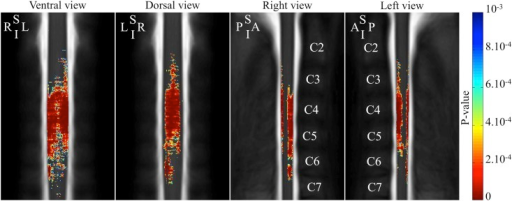 3D atrophy profile along the cervical spinal cord in SMA patients.The color-coding indicates regions with significant atrophy (color scale = p-values of the between groups comparison). A, anterior; I, inferior; L, left, P, posterior, R, right, S, superior.
