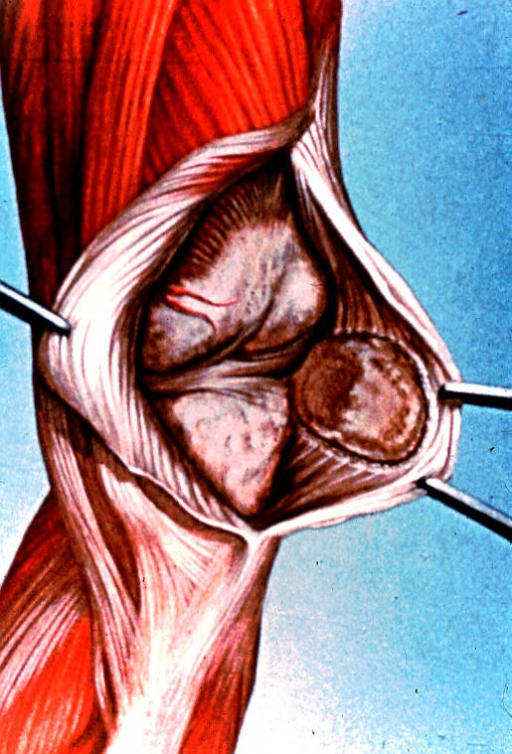 knee; sub-patellar area