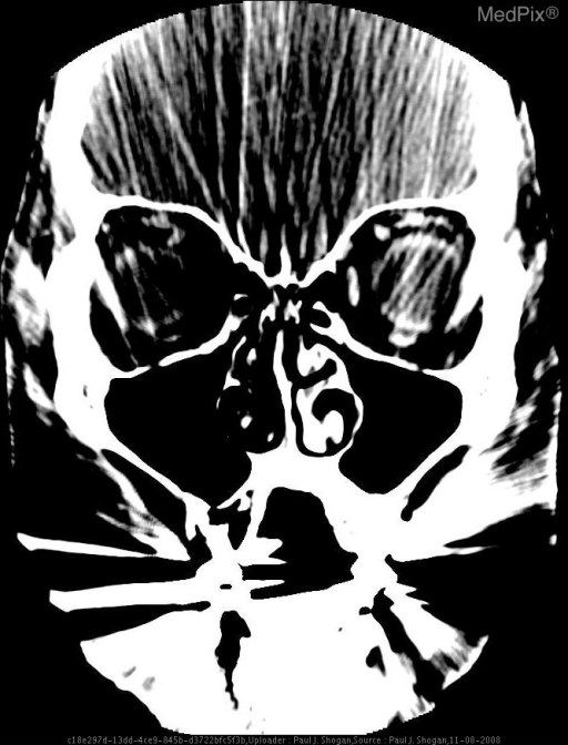 Contrast enhanced axial and coronal CT images reveal abnormal infiltration and thickening of the right preseptal soft tissues, extending into the right medial canthus. No postseptal extension is noted.  No peripheral enhancing fluid collections are seen.