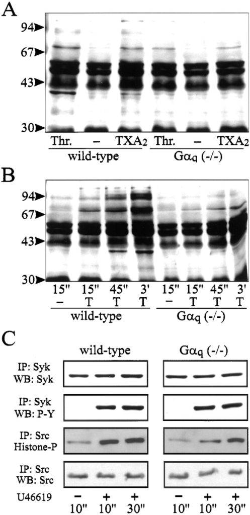 Effect of thrombin and U46619 on tyrosine phosphorylation and pp72syk and pp60c-src-activity in wild-type and Gαq-deficient platelets. (A) Wild-type and Gαq-deficient platelets  were incubated for 30 s in the absence (−) or presence of 5 U/ml  thrombin (Thr.) or 5 μM U46619 (TXA2). (B) Wild-type and  Gαq-deficient platelets were incubated for the indicated times in  the absence (−) or presence of 5 μM of the thromboxane A2 mimetic U46619 (T). Cells were lysed and cellular proteins were  separated by SDS-PAGE and blotted on nitrocellulose filters.  Phosphotyrosine was detected by an antiphosphotyrosine antibody. Shown are autoluminograms with the position of standard  proteins shown on the left. (C) Wild-type (left) and Gαq-deficient  platelets (right) were incubated with buffer (−) or 5 μM U46619  (+) for the indicated times. Platelets were lysed and incubated  with agarose conjugates of anti-pp72syk IgG (IP: Syk) or of anti-pp60c-src IgG (IP: Src), and immunoprecipitates were analyzed by  immunoblotting with antiphosphotyrosine antibodies (WB: P-Y),  anti-pp72syk antibodies (WB: Syk), anti-pp60c-src antibodies (WB:  Src), or were subjected to in vitro kinase assays using histone as a  substrate (Histone-P).