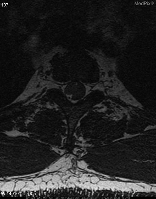 An intradural extramedullary mass is seen at the T2 level measuring 1.2 cm AP x 1.1 cm transverse x 1.7 cm craniocaudad. This mass causes mild compression and leftward shift of the spinal cord. Subtle hyperintense T2 signal abnormality is noted within the mass, and uniformly enhances following gadolinium DTPA. There is a no dural tail. The spinal cord is normal in signal. No neural foraminal extension is seen.