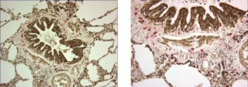1a. (left) Double immunostaining: tryptase positive mast cells (bright red) in a small airway in a tissue sample from a patient with moderate COPD (GOLD stage 2); bronchial and alveolar type 2 epithelial cells and smooth muscle stain golden brown, magnification × 100; 1b. (right) larger magnification (× 200).