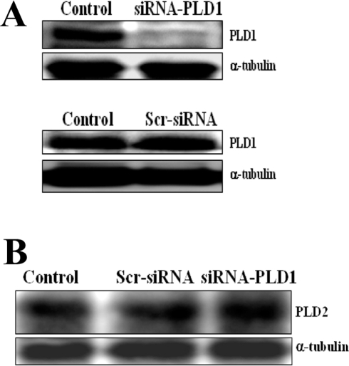 Specific knockdown of PLD1 in BALB/c mice using siRNA.(A) Western blot analysis shows the knockdown of murine phospholipase D1 (PLD1) in BALB/c mice PBMNCs, by the use of specific siRNA for PLD1 (4 µg/mouse). (B) Western blot analysis shows the expression of murine phospholipase D2 (PLD2) in the same set of samples as indicated. Lysates probed for PLD1 and PLD2 from PBMCs were obtained from: untreated mice which served as control (Control); mice injected with siRNA-PLD1 (siRNA-PLD1); and from mice injected with scrambled siRNA (Scr-siRNA). In addition, α-tubulin was probed for loading control.