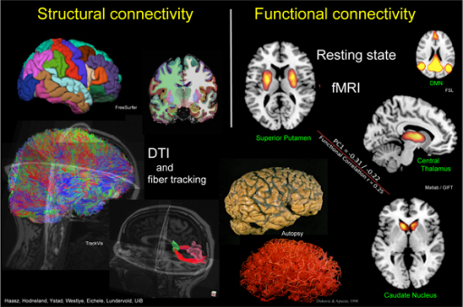 Image result for functional connectivity MRI (fcMRI)
