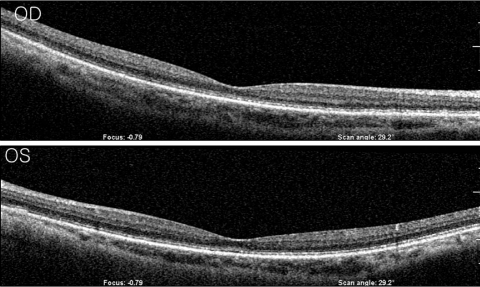 Optical coherence tomography of the macular area revealed no definite abnormal findings.