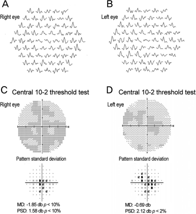 The multifocal electroretinogram demonstrated foveal suppression in both eyes (A,B). A central scotoma was noted on central 10-2 threshold visual field testing (C,D). MD=mean deviation; PSD=pattern standard deviation.