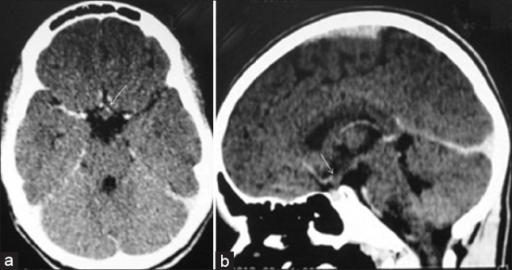 Hypothalamic hamartoma: Axial (a) and sagittal (b) postcontrast CT scan images of brain demonstrate a tiny, well-defined, nonenhancing rounded suprasellar mass arising from hypothalamus (arrow). Note, the lesion is isodense to normal brain parenchyma