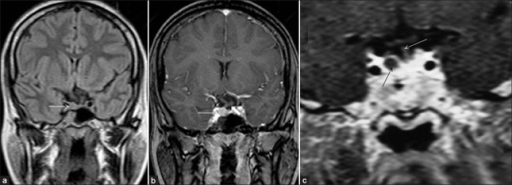 Pituitary microadenoma: Coronal FLAIR (fluid attenuated inversion recovery) (a) and routine T1-weighted postcontrast (b) images of brain show a small nodular lesion (thin white arrow) involving right side of the pituitary gland producing mild bulge of superior margin of the gland and leftward deviation of pituitary stalk (thick white arrow). The lesion appears isointense to the gland on FLAIR image and shows enhancement pattern almost identical to the normal pituitary gland. High resolution dynamic contrast enhanced T1-weighted coronal image (c) of brain of another patient (at 60 seconds) shows a small nonenhancing (dark) microadenoma (thin black arrow) lateralized to the right side of the pituitary gland. Note that the lesion is more conspicuous on dynamic contrast scan as compared with routine contrast scan (seen in Figure 5b). The normal pituitary gland shows marked homogenous enhancement and there is no deviation of pituitary stalk (thin white arrow) in this case. [Reproduced with permission from Indian Journal of Endocrinology and Metabolism]