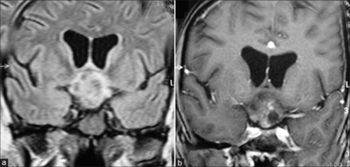 Suprasellar germinoma: Coronal T2W FLAIR (a) and postcontrast T1W (b) images show a solid, heterogeneous, moderately enhancing suprasellar mass in hypothalamic/infundibular region. Multiple nonenhancing, hypointense, intratumoral areas are present representing intratumoral hemorrhage or calcification. Postsurgical biopsy proved suprasellar germinoma.