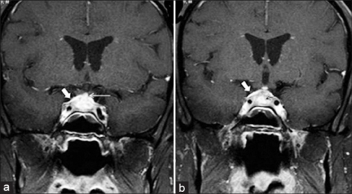 (a, b) Tubercular hypophysitis: Postcontrast T1-weighted coronal images show enlarged pituitary gland with intraglandular ring enhancing tuberculoma (thin black arrow), and thick enhancing pituitary stalk (thin white arrow). Thickening and enhancement of diaphragma sellae (thick white arrow) is also noted. [Reproduced with permission from Indian Journal of Endocrinology and Metabolism]