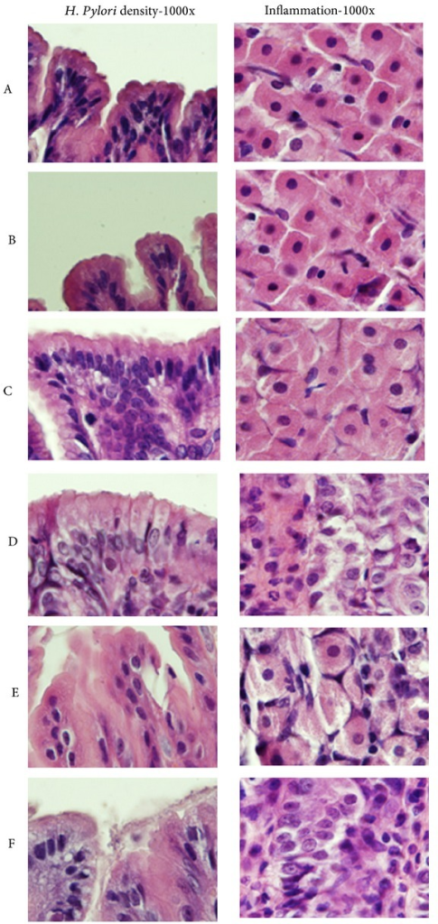 Histological changes of different groups are shown (H&E stain 1000x). We show the status of H. pylori density in right field and the status of inflammation in left field. There is no obvious inflammatory cells infiltration in groups A, B, and C, but obvious inflammatory cells infiltration was noted in groups D, E, and F. The densities of H. pylori were higher in group F.