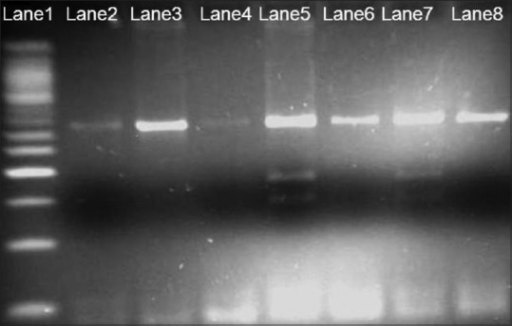 Three percent agarose gel, Hinf I restriction fragment length polymorphism analysis of methylenetetrahydrofolate reductase 677; Lane 1-50 bp ladder; Lanes 2, 3, 4, 6 and 8 - homozygous wild type; Lane 5 and 7 -heterozygous polymorphic