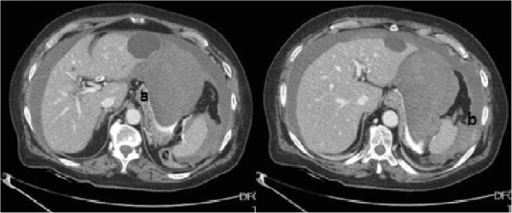 CT showing severe haemoperitoneum with two major blood collections localized respectively along the course of hepato-gastric ligament (a) and in the left sub-phrenic space (b).