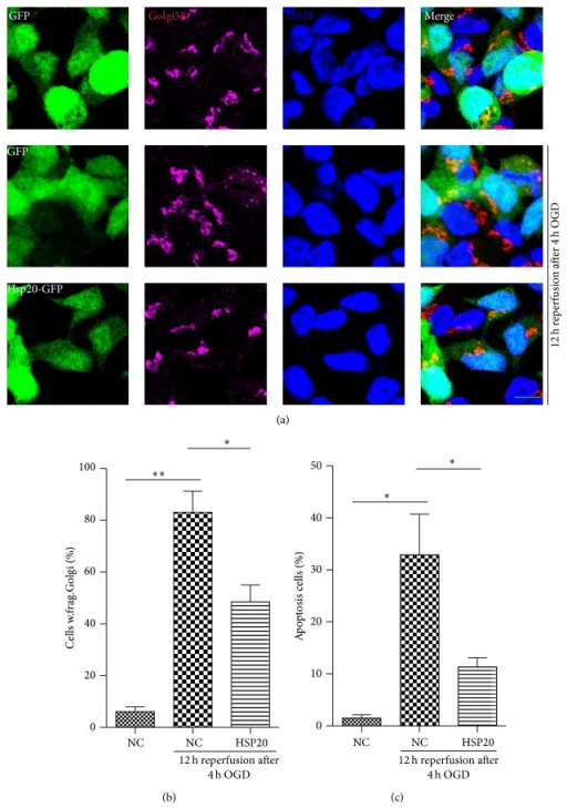 Effects of Hsp20 on GA morphology and apoptosis in N2a cells exposed to OGDR. N2a cells were transfected with different plasmids (pEGFP-N1 and pEGFP-Hsp20). After transfection for 36 h, cells were treated with OGD 4 h plus 12 h reperfusion. The experiment was repeated independently for at least three times. (a) Digital photomicrograph under fluorescent illumination showing the morphology of GA was detected using Golgi58 staining. GA displayed typical ribbon-like structures adjacent to the nuclei in N2a cell transfected with pEGFP-N1 without OGDR exposure. Fragmented GA was evident in N2a cells transfected with pEGFP-N1 exposed to 4 h OGD plus 12 h reperfusion insult. Transfection with Hsp20 significantly attenuated OGDR-induced fragmentation of GA. (b) Quantitation (mean ± SEM) of (a) from three independent experiments. (c) Overexpression of Hsp20 in vitro reduced OGDR-induced apoptosis. Values are expressed as mean ± SEM. ∗P < 0.05 compared to control. ∗∗P < 0.01 compared to control (Bar = 10 μm).