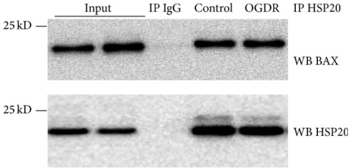Hsp20 interacts with Bax. Co-IP of Bax with Hsp20. The co-IP was performed with anti-Hsp20 antibodies and an IgG control, followed by Western blot with anti-Bax antibodies. The experiment was repeated independently for at least three times.